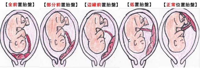 低い 位置 が 胎盤 の